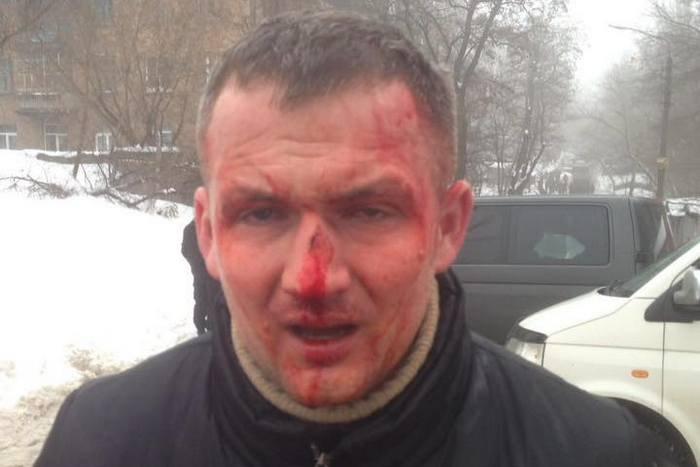 Полиция расследует избиение нардепа Левченко как хулиганство