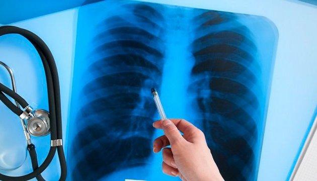 В Украине зарегистрировали инновационное лекарство против туберкулеза