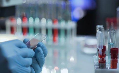 Количество инфицированных коронавирусом выросло до 10861