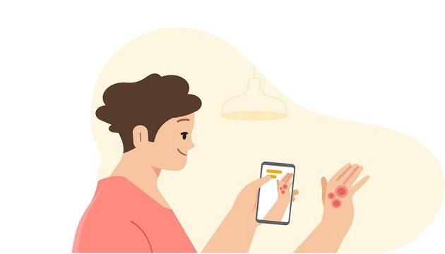 Google представил приложение для обнаружения заболевания кожи