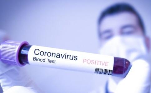 На Буковине зафиксировали 134 новых случая заболевания Covid-19
